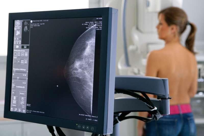 Women gets a mammogram.